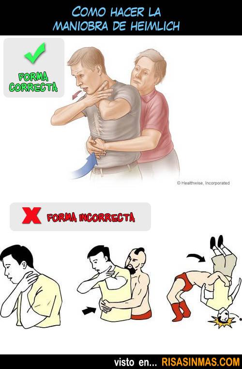 Cómo hacer la maniobra de Heimlich