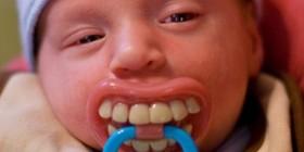 Chupete de dientes