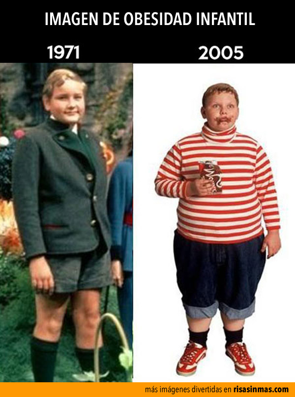 Evolución de la obesidad infantil