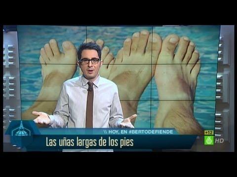 Berto defiende las uñas largas de los pies